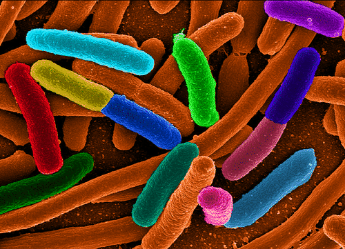 Artifically colored E. coli