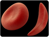 Image of blood cell caused by sickle-cell anemia
