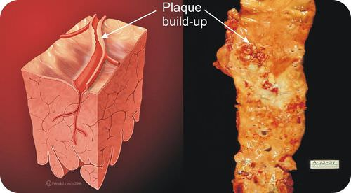 Atherosclerosis occurs when artery walls become inflamed and plaque builds up