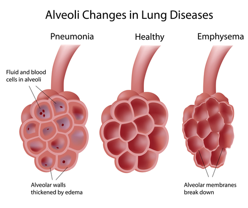 Alveoli: healthy, pneumonia, and emphysema.