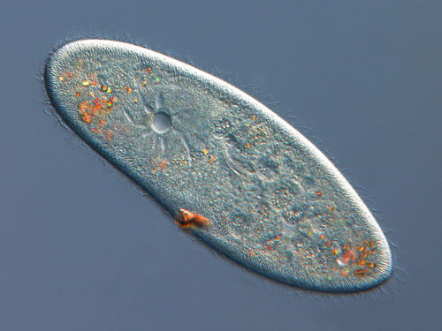 A photo that shows the contractile vacuole within paramecia