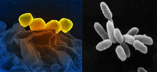 Pictures of bacteria and archaea