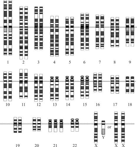 Chromosomes of a person with Down Syndrome, with an extra chromosome 21