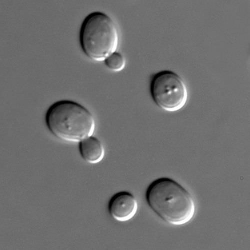 Budding in yeast cells