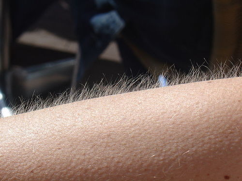 Goosebumps are caused by tiny muscles in the dermis that pull on hair follicles, which causes the hairs to stand up straight