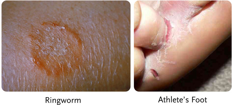 Ringworm and athlete's foot are fungal diseases