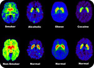 PET scans of dopamine in normal and addicted individuals