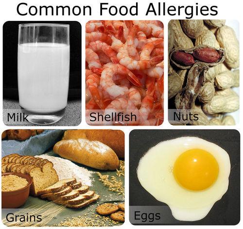 Common allergic foods: milk, shellfish, grains, egg, nuts