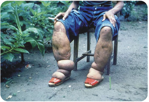 A swollen leg caused by elephantiasis, resulting from a roundworm parasite