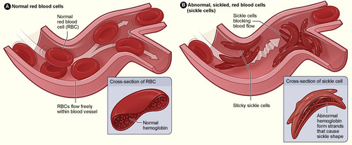 Illustration of sickle cell anemia