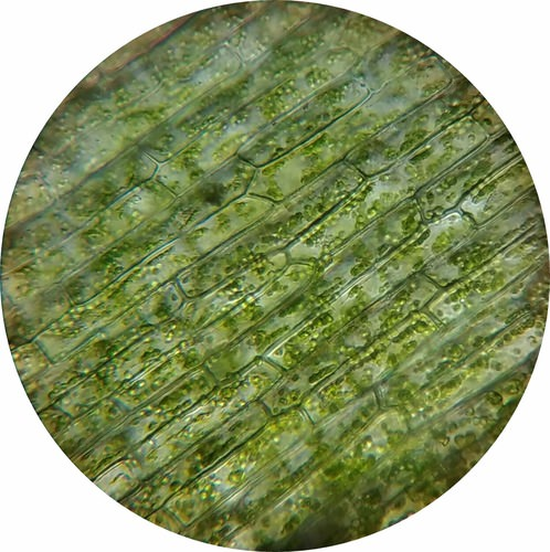 Chloroplasts under a microscope