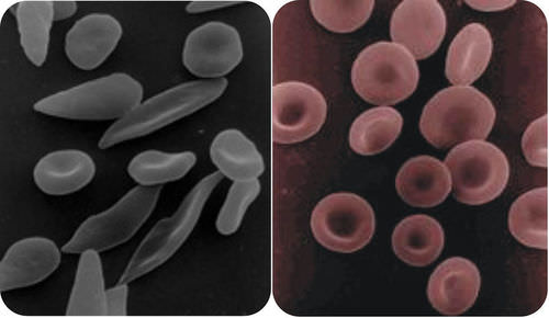 The red blood cells of an individual with sickle-cell anemia are long and pointed and get stuck in capillaries
