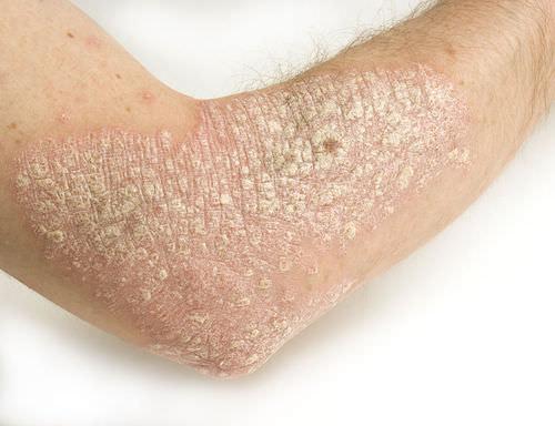 Skin Diseases and Disorders - Advanced