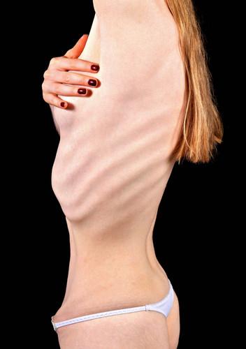 Eating Disorders - Advanced