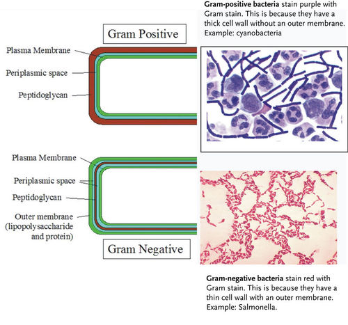 Classification of bacteria: gram positive and gram negative