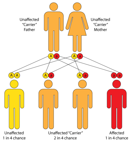 Tay-Sachs disease, with autosomal recessive inheritance