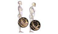 Keeping Bones and Joints Healthy Quiz - MS LS