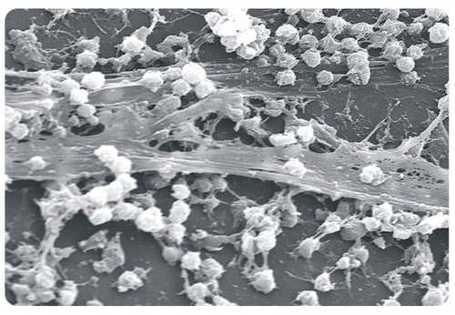 Bacterial biofilm under microscope