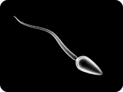This illustration shows the main parts of a sperm