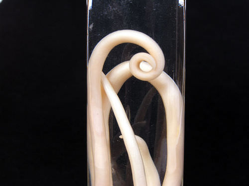 Roundworm Diseases - Advanced