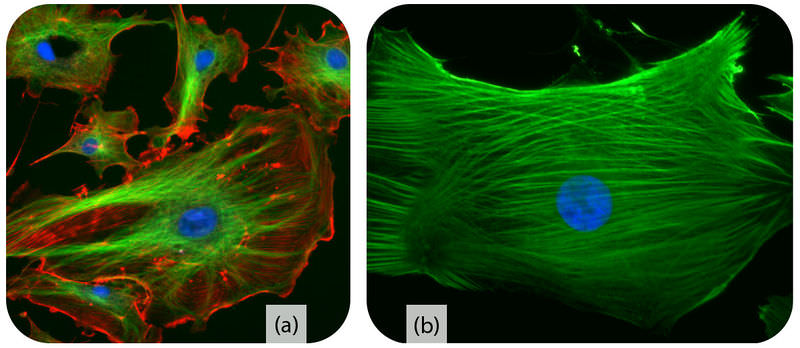 Images of cytoskeleton and microfilaments
