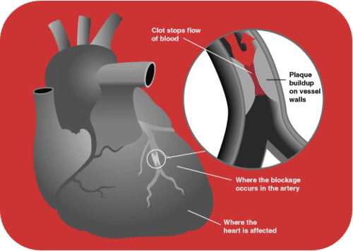 When the coronary artery gets blocked, the heart gets starved of oxygen and eventually dies