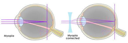 Illustration of individual with Myopia