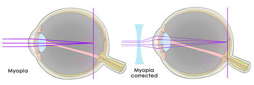 Illustration of individual with Myopia