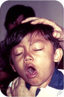 Whooping cause is a disease of the respiratory track