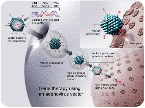 Diagram of in vivo gene therapy using an adenovirus
