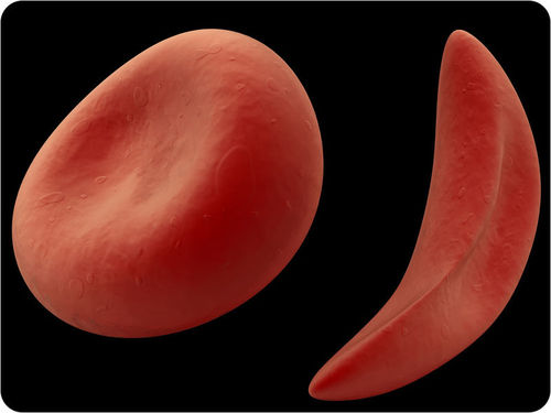 Sickle cell anemia and normal red blood cells