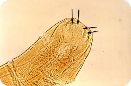 Parasitic hookworm under microscope