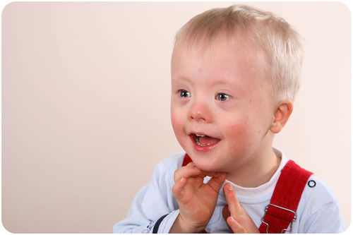 A child with Down syndrome.