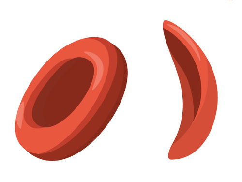 Sickle-cell anemia blood cells, and normal red blood cell