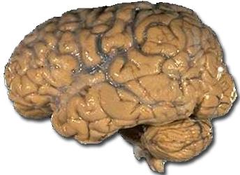 Photograph of a human brain