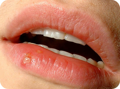 This lip blister or cold sore is caused by the sexually transmitted herpes virus