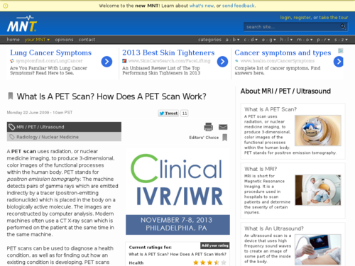What is a PET Scan? How Does a PET Scan Work?