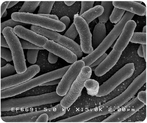 E. coli, a primitive prokaryote that may resemble the earliest cells