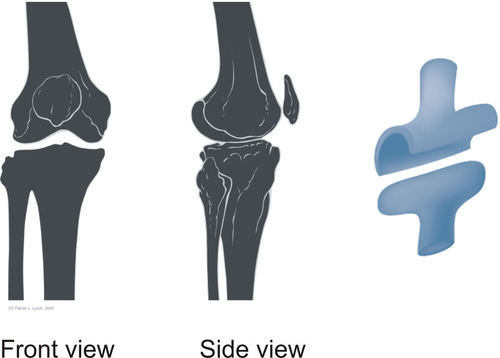Hinge joints like the knee allows forward and backward movement