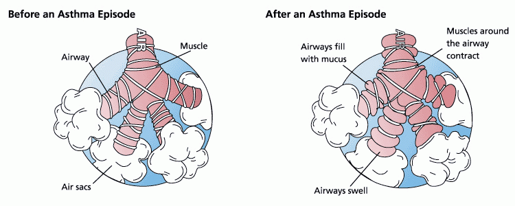 Asthma occurs when the bronchioles swell and the muscles around the bronchioles contract