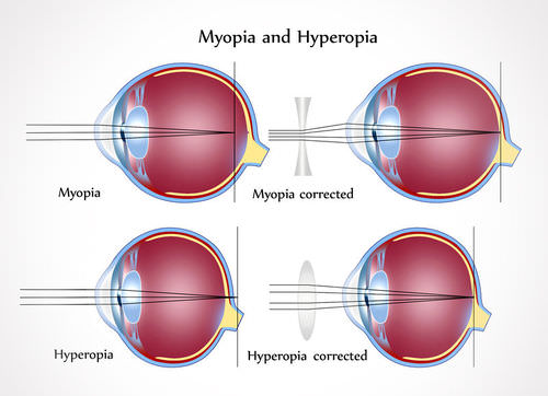 This illustrations shows how light rays are improperly focused in individuals with myopia and hyperopia