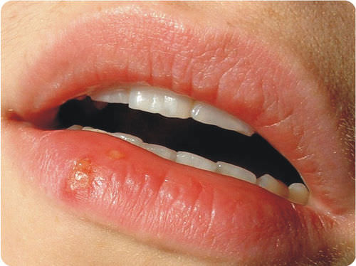 Cold sore caused by herpes virus