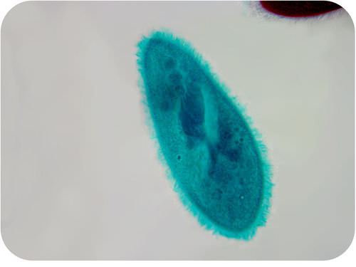 Picture of a paramecium, a single-celled organism
