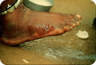 Guinea worm infection