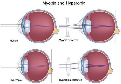 Myopia, Hyperopia